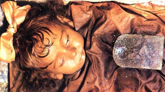 La piccola Rosalia Lombardo, imbalsamata dal dottor Alfredo Salafia