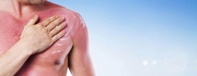 """""""Le scottature solari ripetute, da un lato accelerano i processi d'invecchiamento, dall'altro favoriscono la comparsa di lesioni precancerose della pelle"""""""