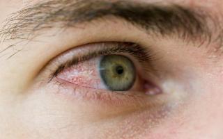 Sapete perché vengono gli occhi rossi?